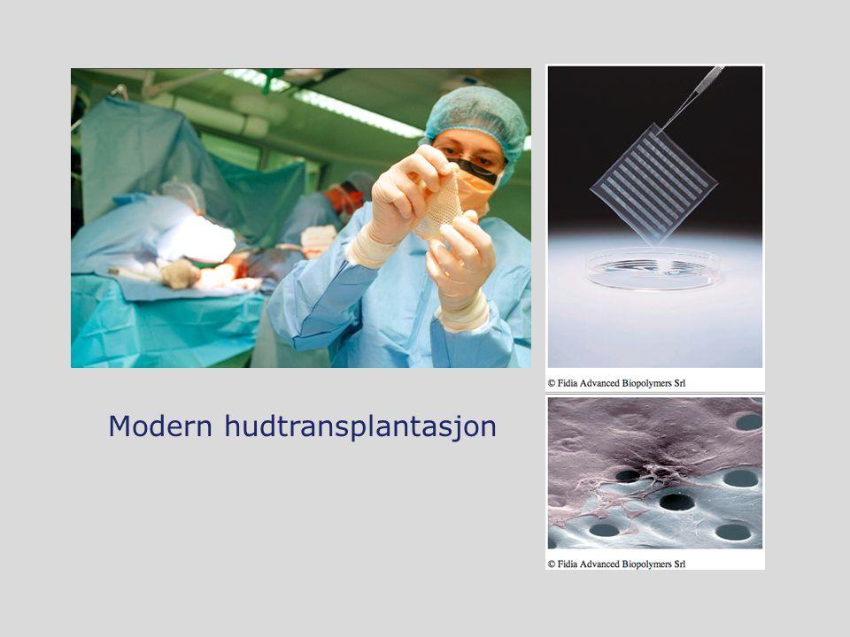 Modern hudtransplantasjon