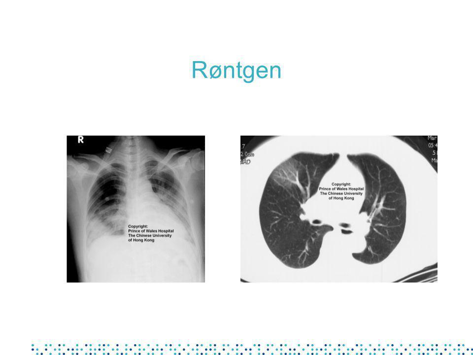Hematologiske prøver ved innleggelse Leukopeni (< 3.5 x 10 9 /l) Lymfopeni (< 1 x 10 9 /l) Trombocytopeni Cefotest forlenget D-dimer forhøyet % 34 70 45 43 45 Lee N et al, NEJM 29 April 2003