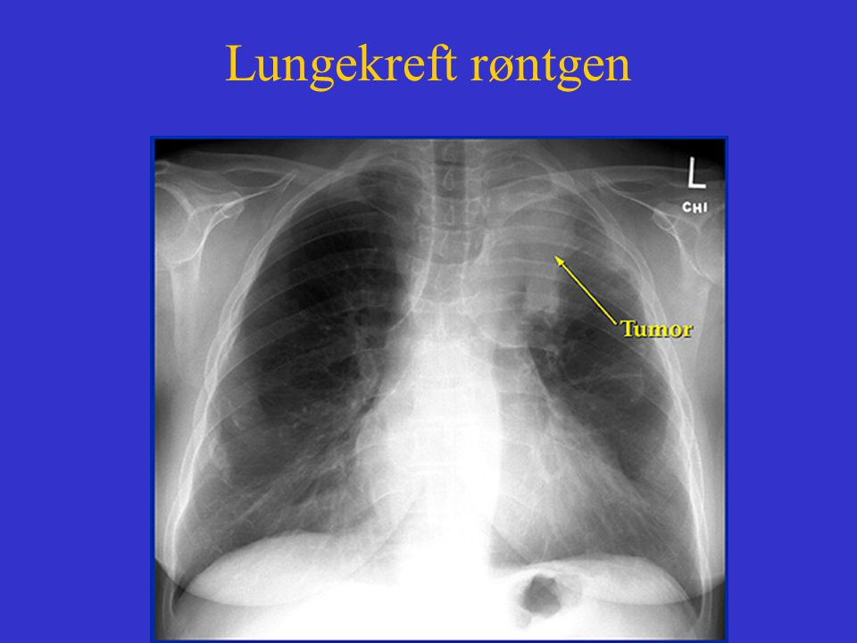Lungekreft røntgen