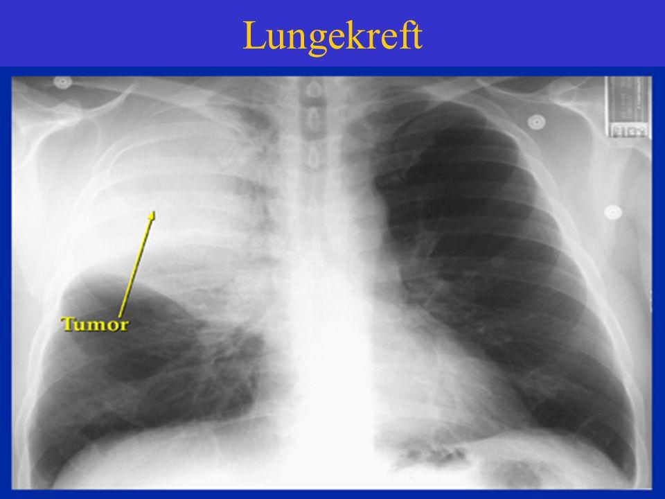Lungekreft CT