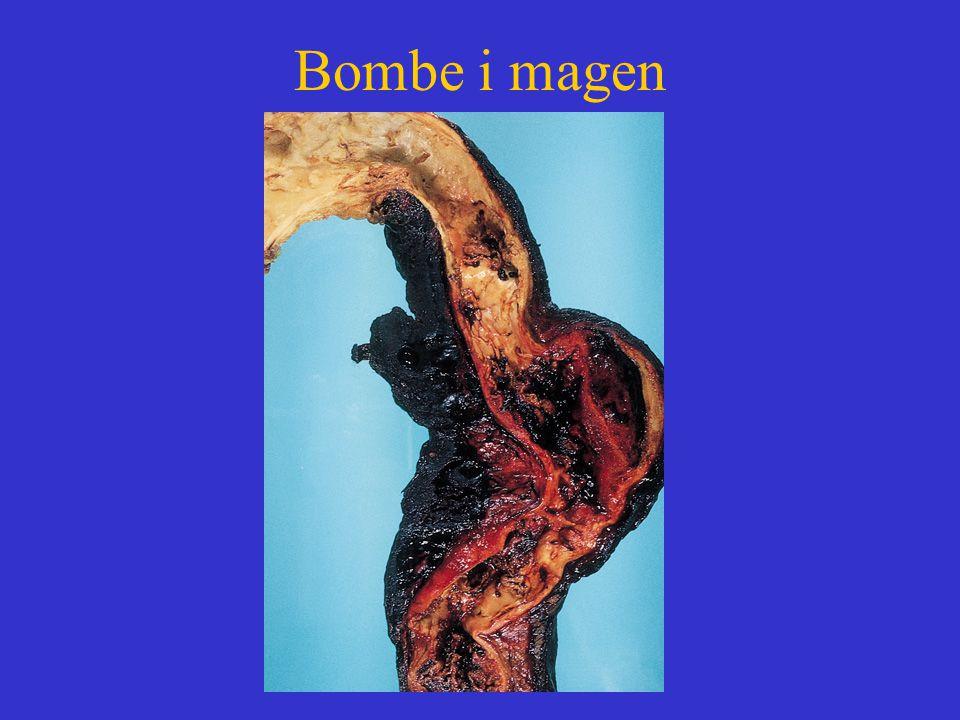 Bombe i magen