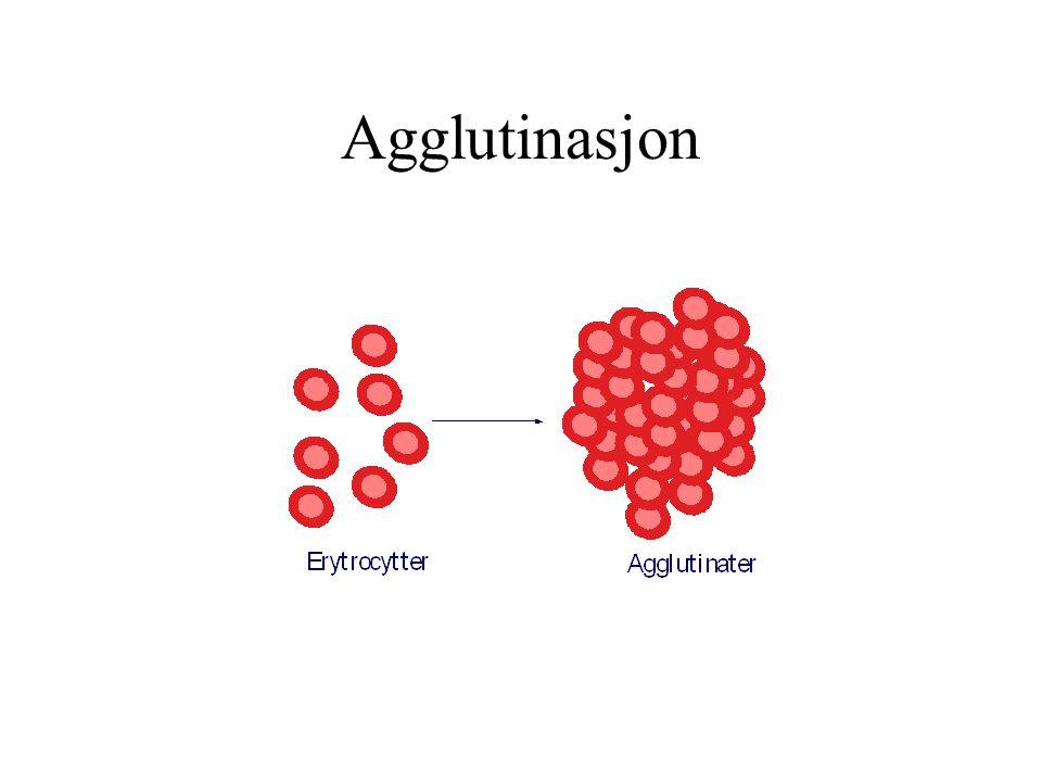 ABO-systemet A antigen A-transferase Karbohydrat- H-substans B-transferase B antigen antigen Manglende transferase ( Stumt gen ) H substans ( O antigen )