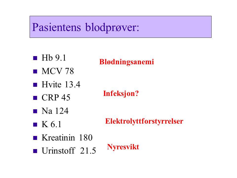 Pasientens blodprøver: Hb 9.1 Hb 9.1 MCV 78 MCV 78 Hvite 13.4 Hvite 13.4 CRP 45 CRP 45 Na 124 Na 124 K 6.1 K 6.1 Kreatinin 180 Kreatinin 180 Urinstoff 21.5 Urinstoff 21.5 Blødningsanemi Infeksjon.