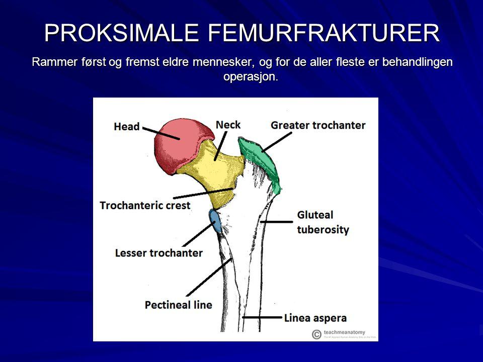 PROKSIMALE FEMURFRAKTURER Rammer først og fremst eldre mennesker, og for de aller fleste er behandlingen operasjon.