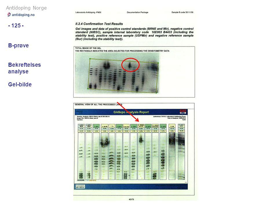 Antidoping Norge - 125 - B-prøve Bekreftelses analyse Gel-bilde