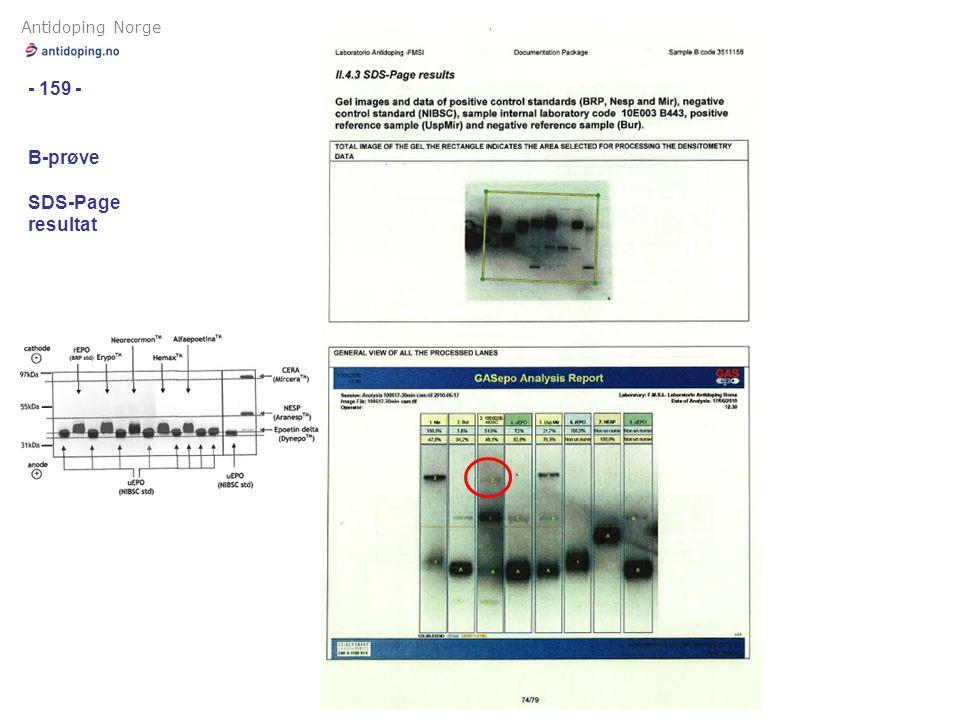 Antidoping Norge - 159 - B-prøve SDS-Page resultat
