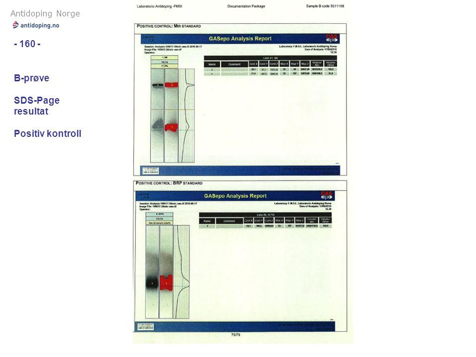 Antidoping Norge - 160 - B-prøve SDS-Page resultat Positiv kontroll