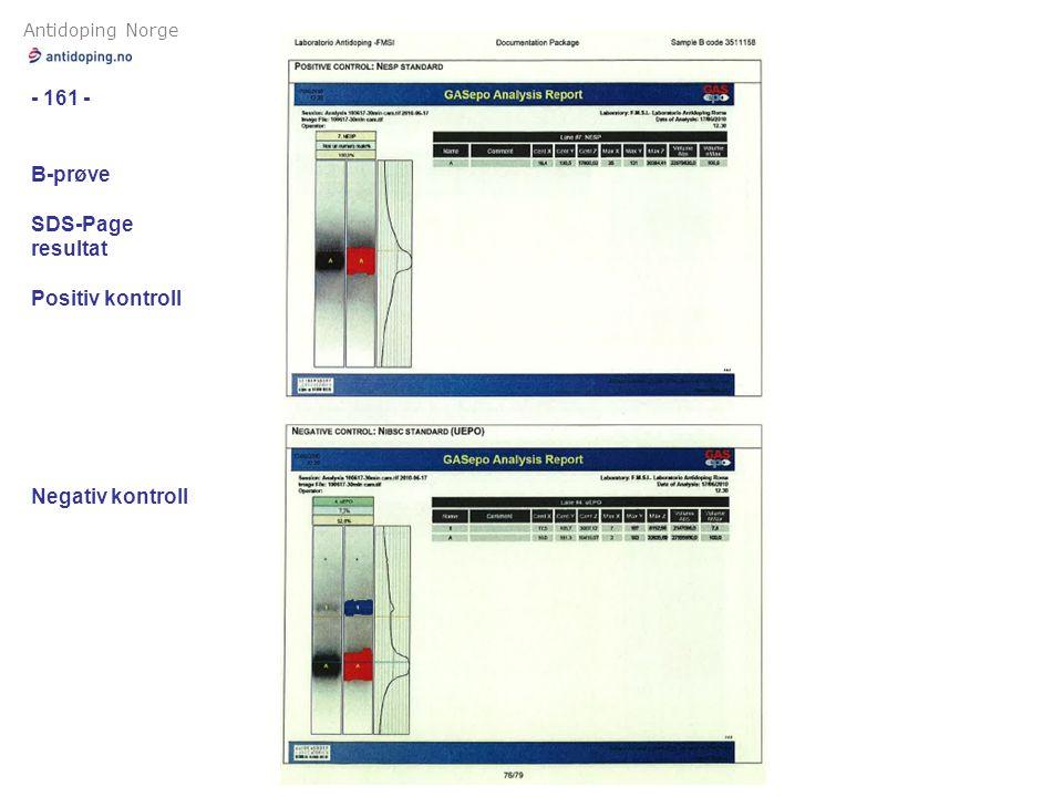 Antidoping Norge - 161 - B-prøve SDS-Page resultat Positiv kontroll Negativ kontroll