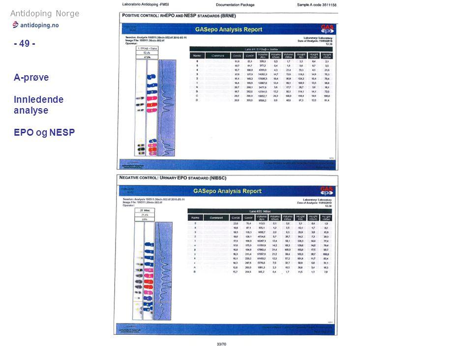 Antidoping Norge - 49 - A-prøve Innledende analyse EPO og NESP