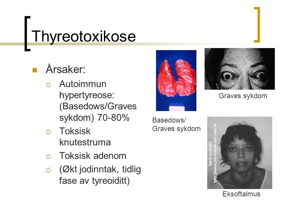 Thyreotoxikose Årsaker:  Autoimmun hypertyreose: (Basedows/Graves sykdom) 70-80%  Toksisk knutestruma  Toksisk adenom  (Økt jodinntak, tidlig fase