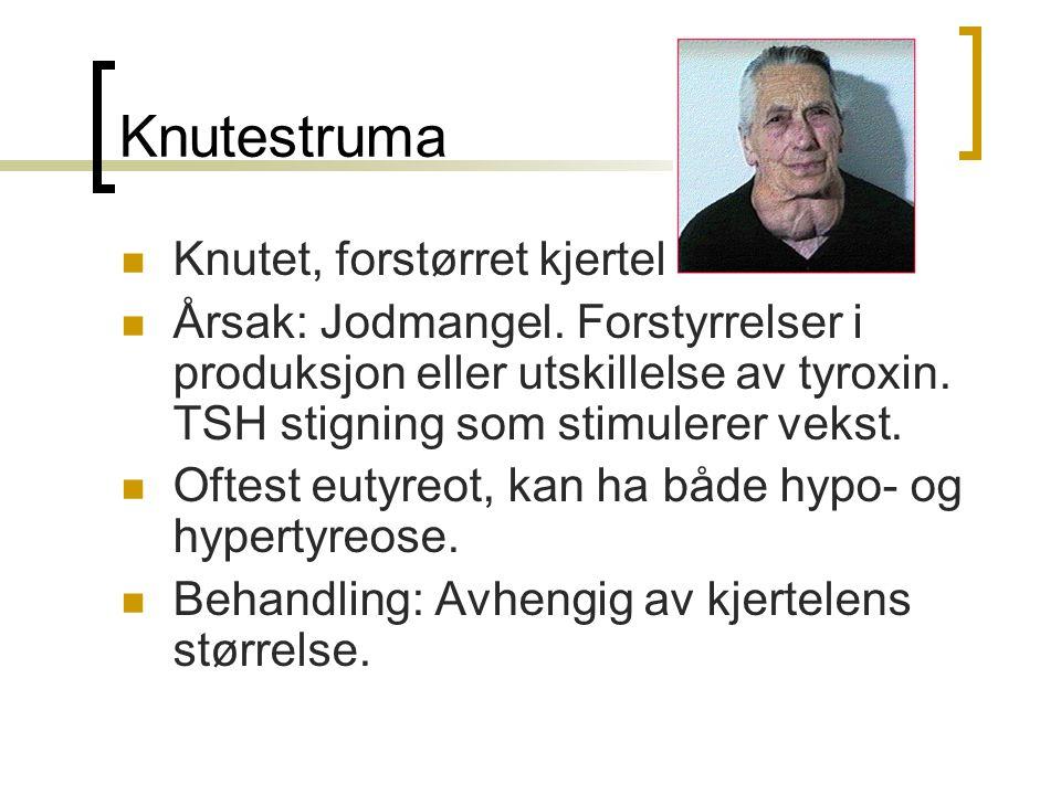 Knutestruma Knutet, forstørret kjertel Årsak: Jodmangel. Forstyrrelser i produksjon eller utskillelse av tyroxin. TSH stigning som stimulerer vekst. O