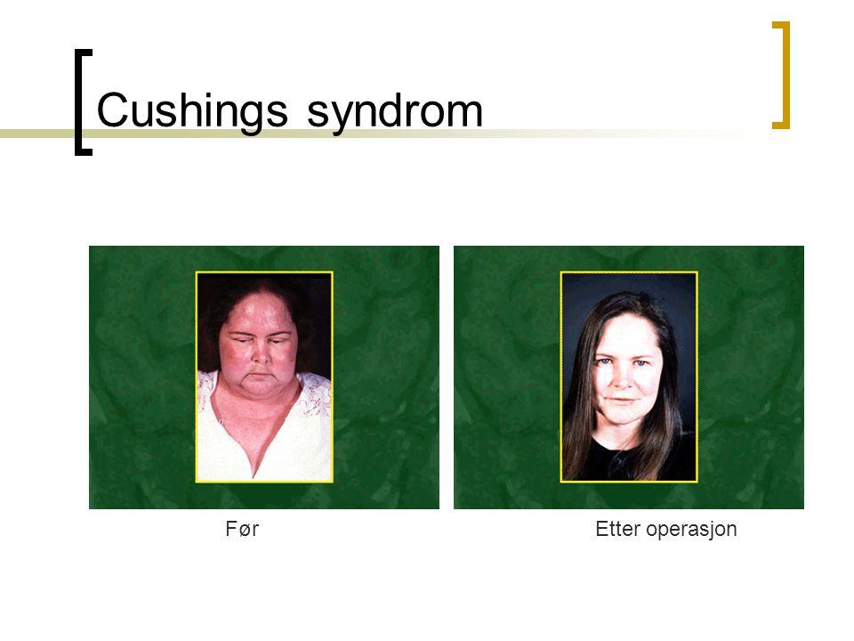 Cushings syndrom FørEtter operasjon
