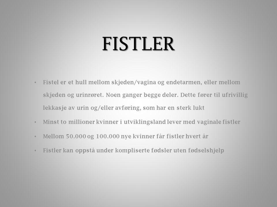 FISTLER Fistel er et hull mellom skjeden/vagina og endetarmen, eller mellom skjeden og urinrøret.