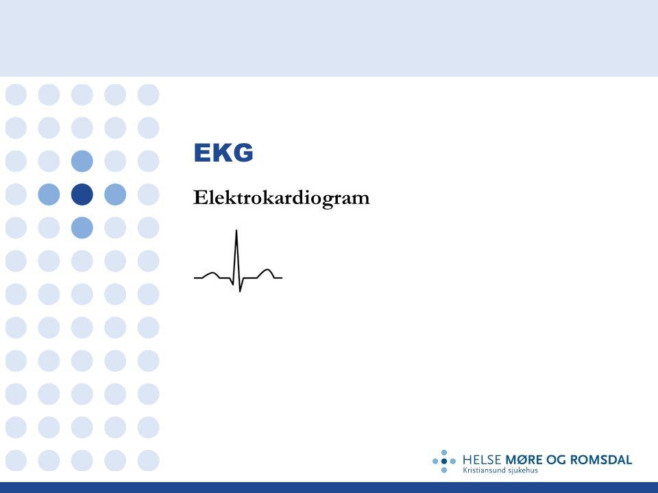 EKG Hjertets depolarisering skaper elektriske bølger Et EKG apparat måler denne elektriske aktiviteten igjennom huden Baserer seg på elektrisk endringen mellom to punkter