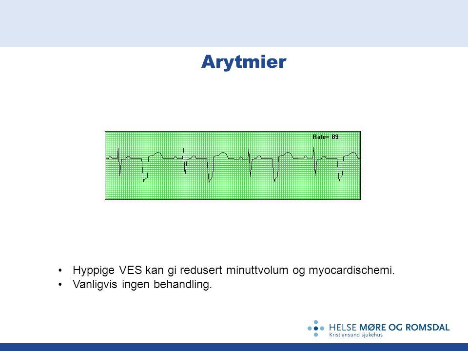 Arytmier Hyppige VES kan gi redusert minuttvolum og myocardischemi. Vanligvis ingen behandling.