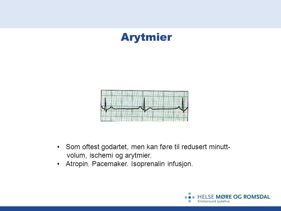 Arytmier Som oftest godartet, men kan føre til redusert minutt- volum, ischemi og arytmier. Atropin. Pacemaker. Isoprenalin infusjon.