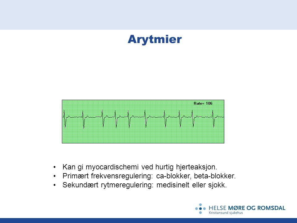 Arytmier Kan gi myocardischemi ved hurtig hjerteaksjon. Primært frekvensregulering: ca-blokker, beta-blokker. Sekundært rytmeregulering: medisinelt el