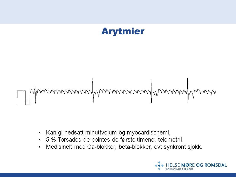 Arytmier Kan gi nedsatt minuttvolum og myocardischemi, 5 % Torsades de pointes de første timene, telemetri.