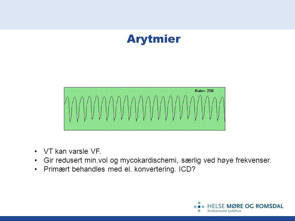Arytmier VT kan varsle VF. Gir redusert min.vol og mycokardischemi, særlig ved høye frekvenser. Primært behandles med el. konvertering. ICD?