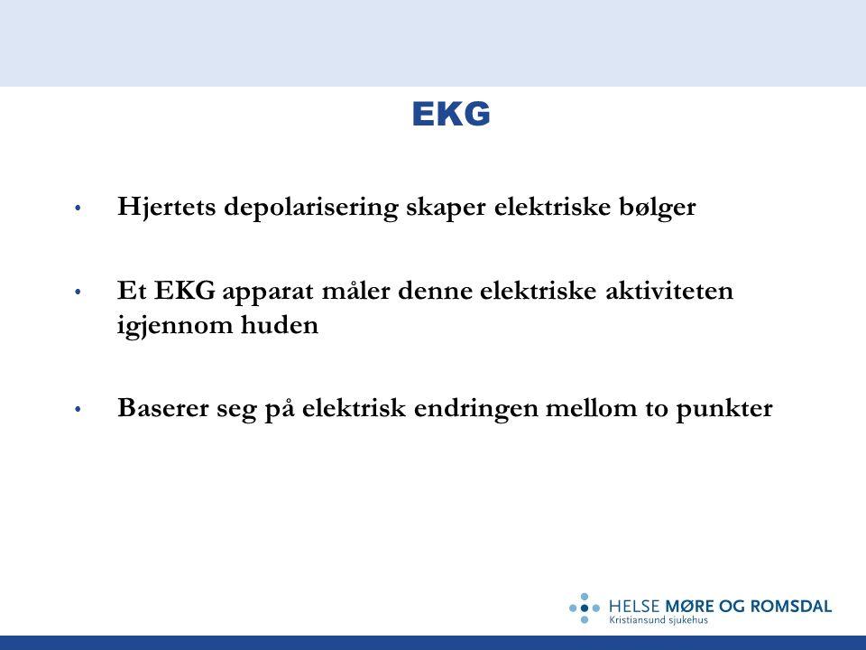 EKG Hjertets depolarisering skaper elektriske bølger Et EKG apparat måler denne elektriske aktiviteten igjennom huden Baserer seg på elektrisk endring