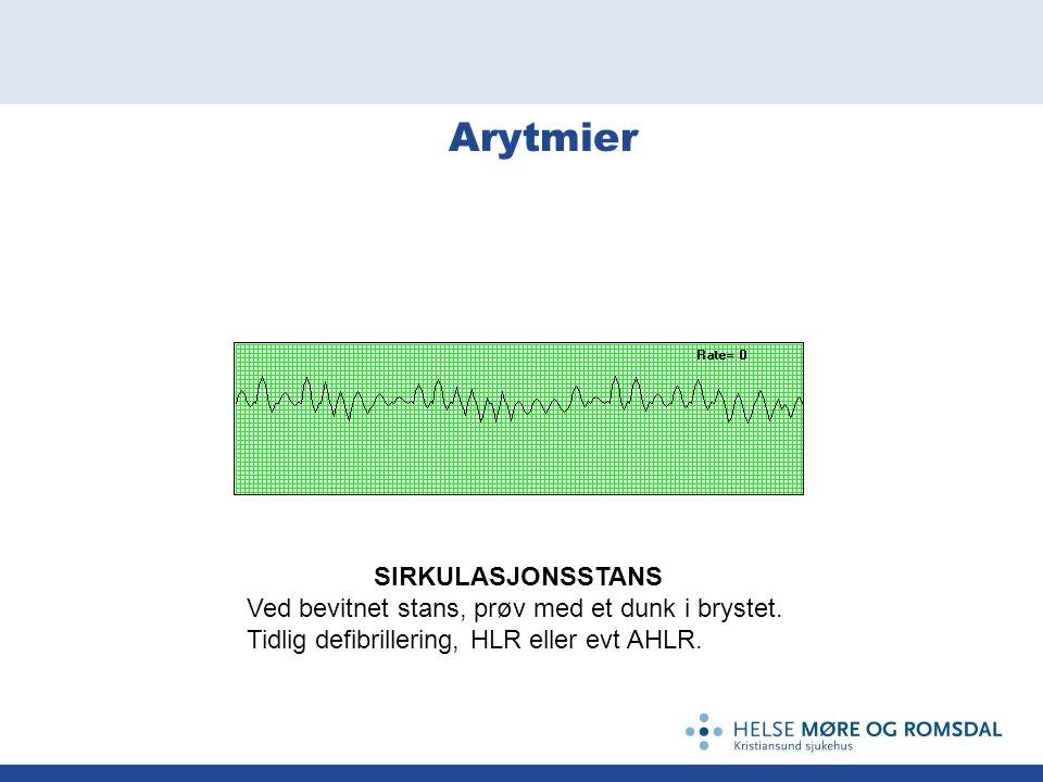 Arytmier SIRKULASJONSSTANS Ved bevitnet stans, prøv med et dunk i brystet. Tidlig defibrillering, HLR eller evt AHLR.