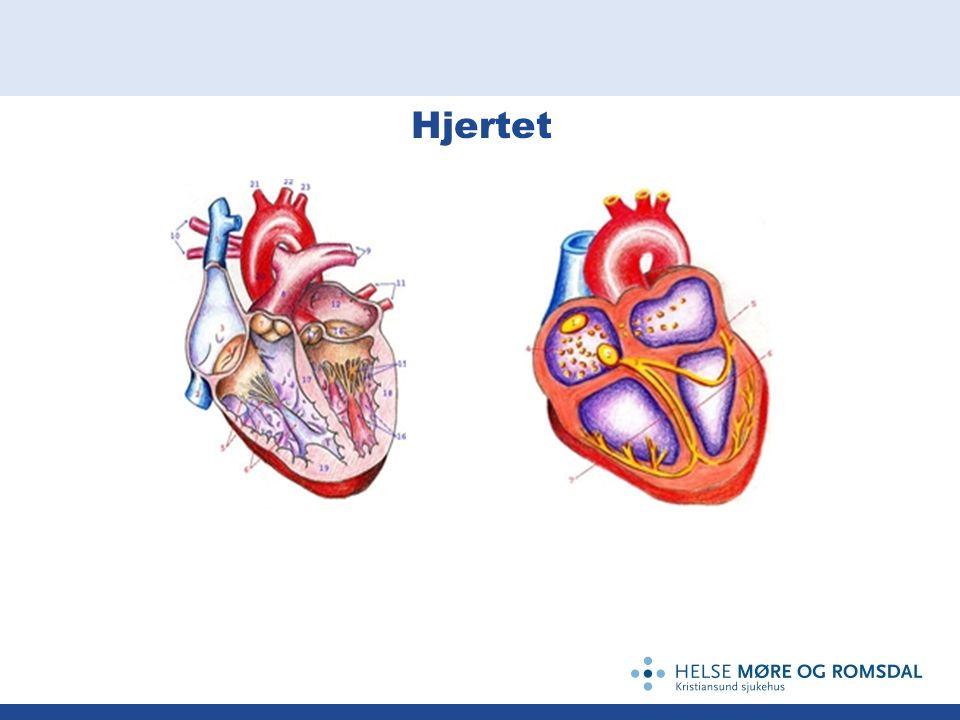 Arytmier Kan gi myocardischemi ved hurtig hjerteaksjon.