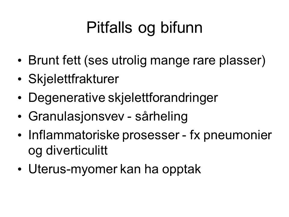 Pitfalls og bifunn Brunt fett (ses utrolig mange rare plasser) Skjelettfrakturer Degenerative skjelettforandringer Granulasjonsvev - sårheling Inflamm