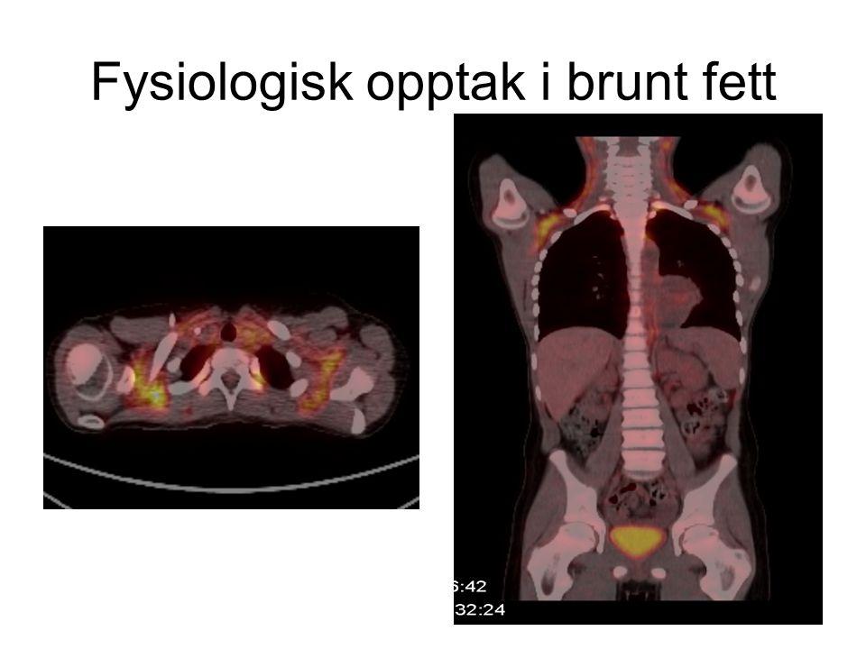 Fysiologisk opptak i brunt fett