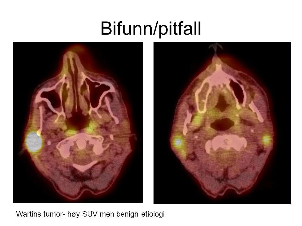 Bifunn/pitfall Wartins tumor- høy SUV men benign etiologi