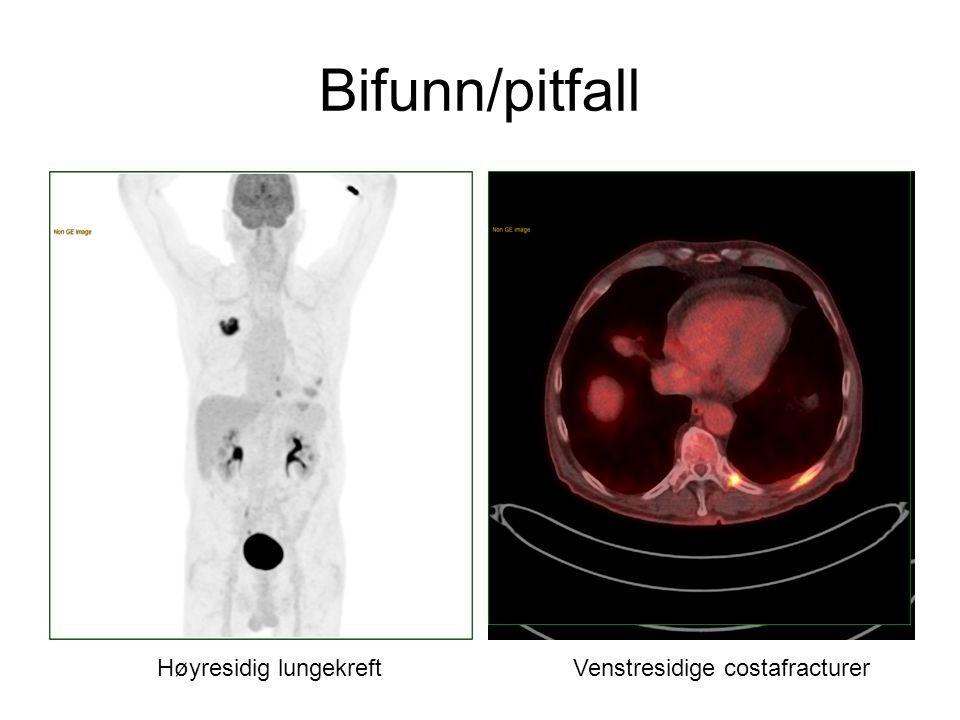 Bifunn/pitfall Høyresidig lungekreftVenstresidige costafracturer