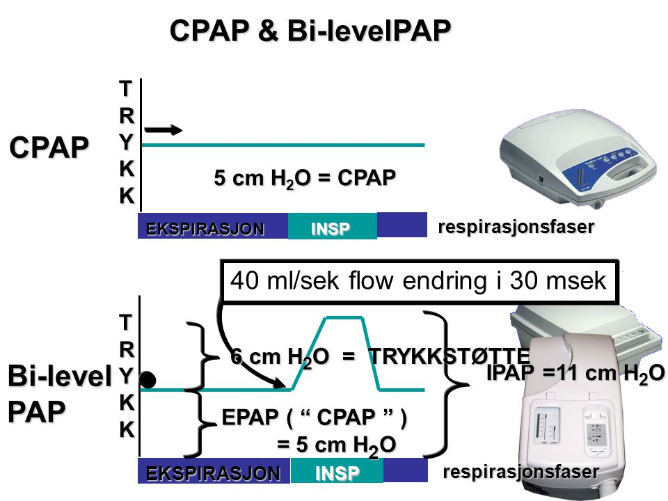 Bi-levelPAP TRYKKTRYKKTRYKKTRYKK INSP respirasjonsfaser EKSPIRASJON CPAP & Bi-levelPAP CPAP TRYKKTRYKKTRYKKTRYKKINSP respirasjonsfaser EKSPIRASJON 5 c