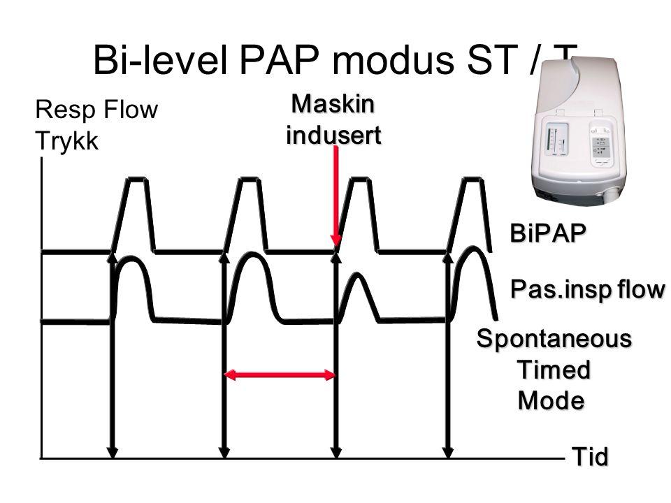 Bi-level PAP modus ST / T Tid Resp Flow Trykk BiPAP Pas.insp flow SpontaneousTimedMode Maskinindusert