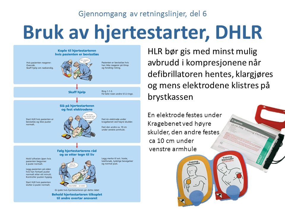 Gjennomgang av retningslinjer, del 6 Bruk av hjertestarter, DHLR HLR bør gis med minst mulig avbrudd i kompresjonene når defibrillatoren hentes, klarg