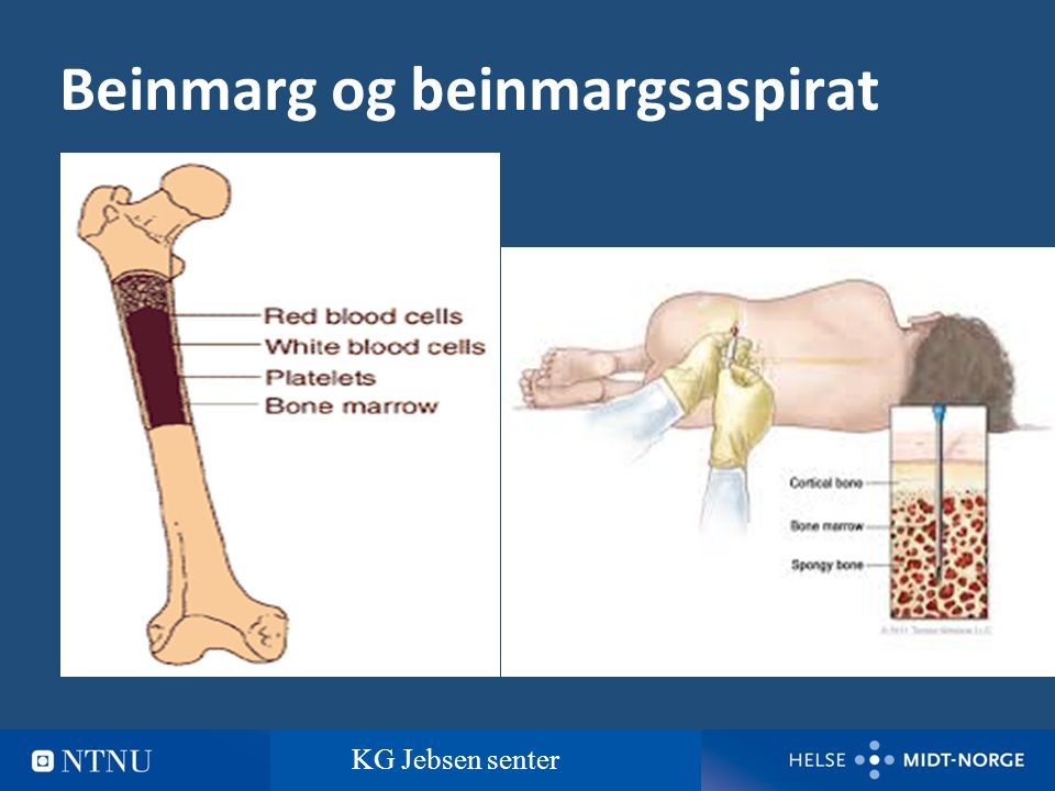 3 Normal beinmarg og myelomatose Normal beinmargMyelomatose KG Jebsen senter